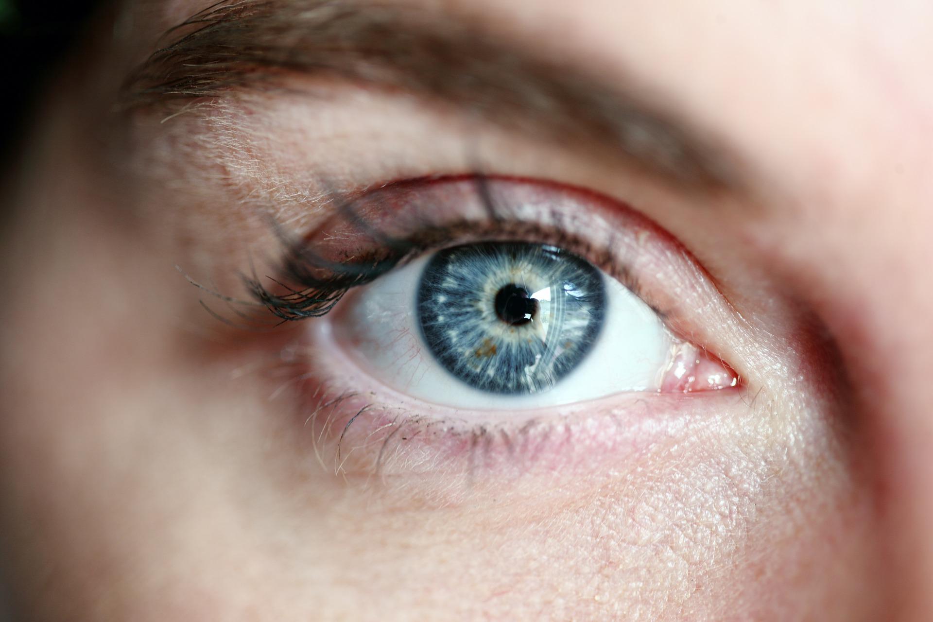 Les mosques volants als ulls: què són i com es poden tractar