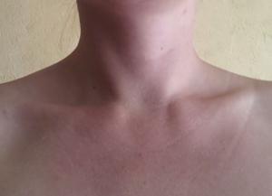 La pell necessita més atenció